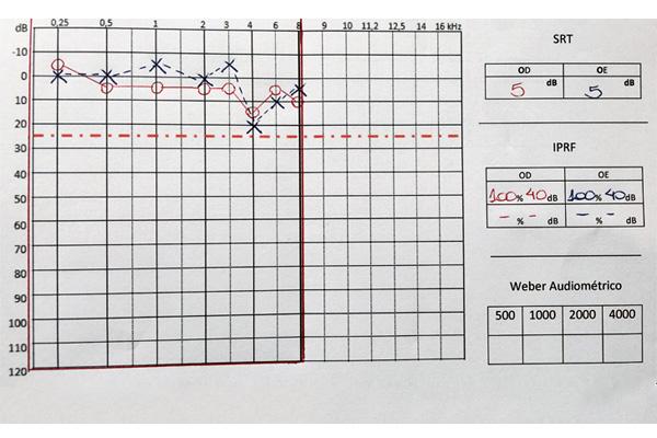 instituto-ganz-sanchez-audiometria-alto-frequencia-1